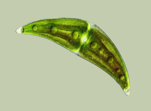 Closterium-moniliferum_gross